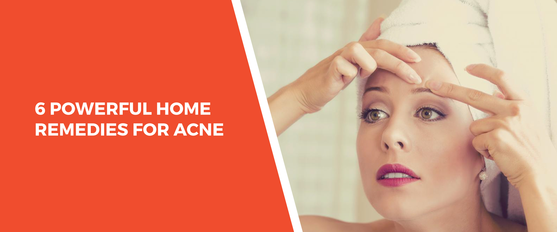 6 Powerful Home Remedies for Acne
