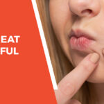How to Treat Deep And Painful Acne